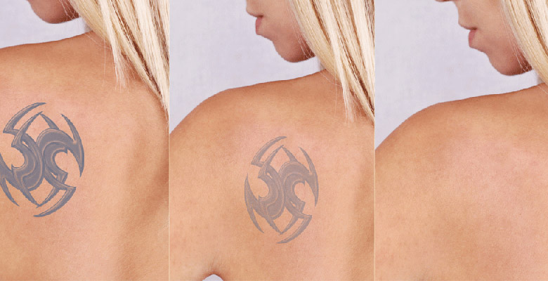Best female skin doctor for tattoo treatment in chennai