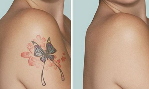 tattoo treatment in Chennai