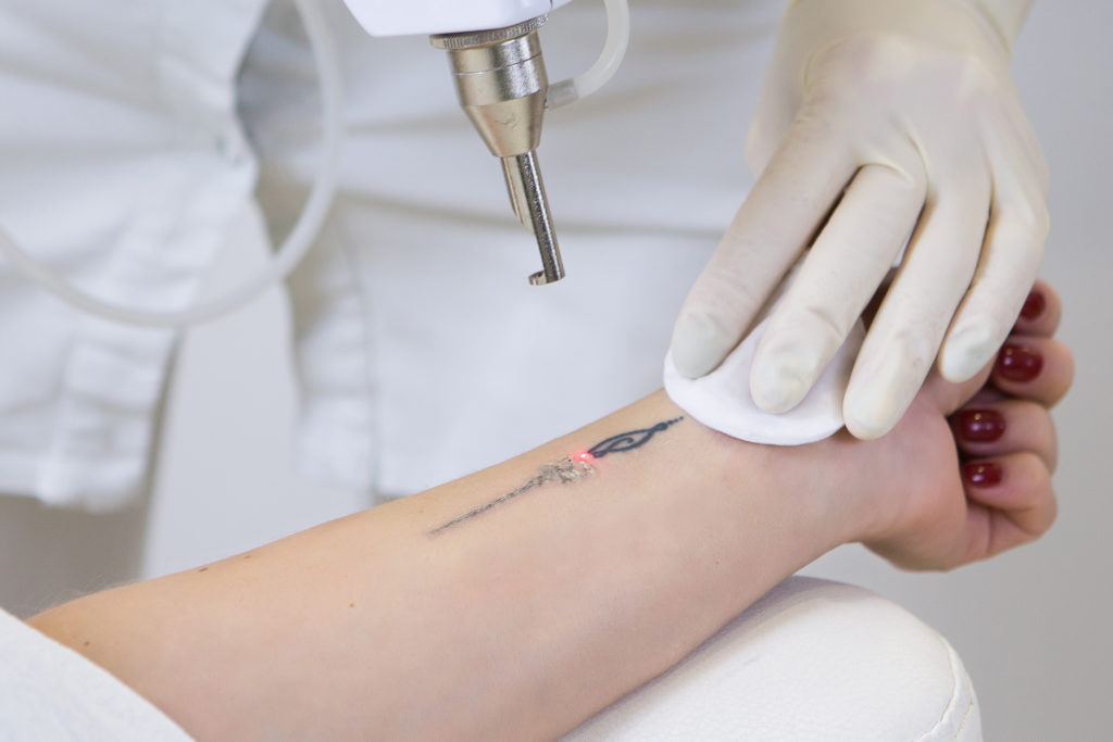 Best female dermatologist for tattoo removal in Madipakkam Chennai